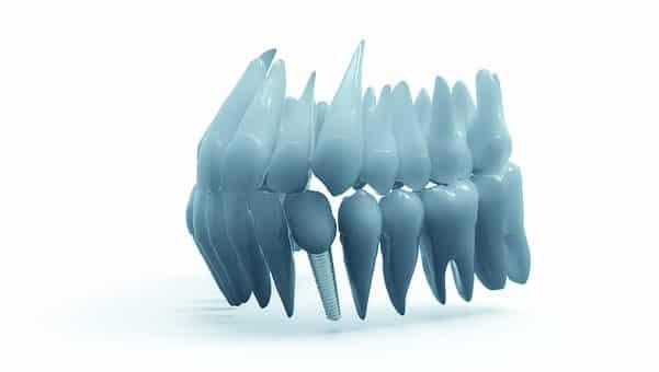 Oklahoma City Dental Implants